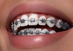 ORTHODONTICT