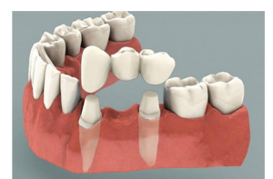 dental-crown-and-bridge-treatment-500x500
