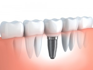 dental-implants-southend