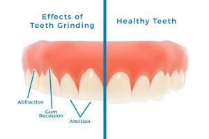 teeth-grinding-at-night-bloomingdale-il_0