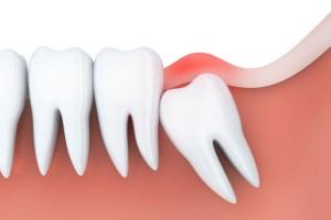 wisdom-tooth-825x550
